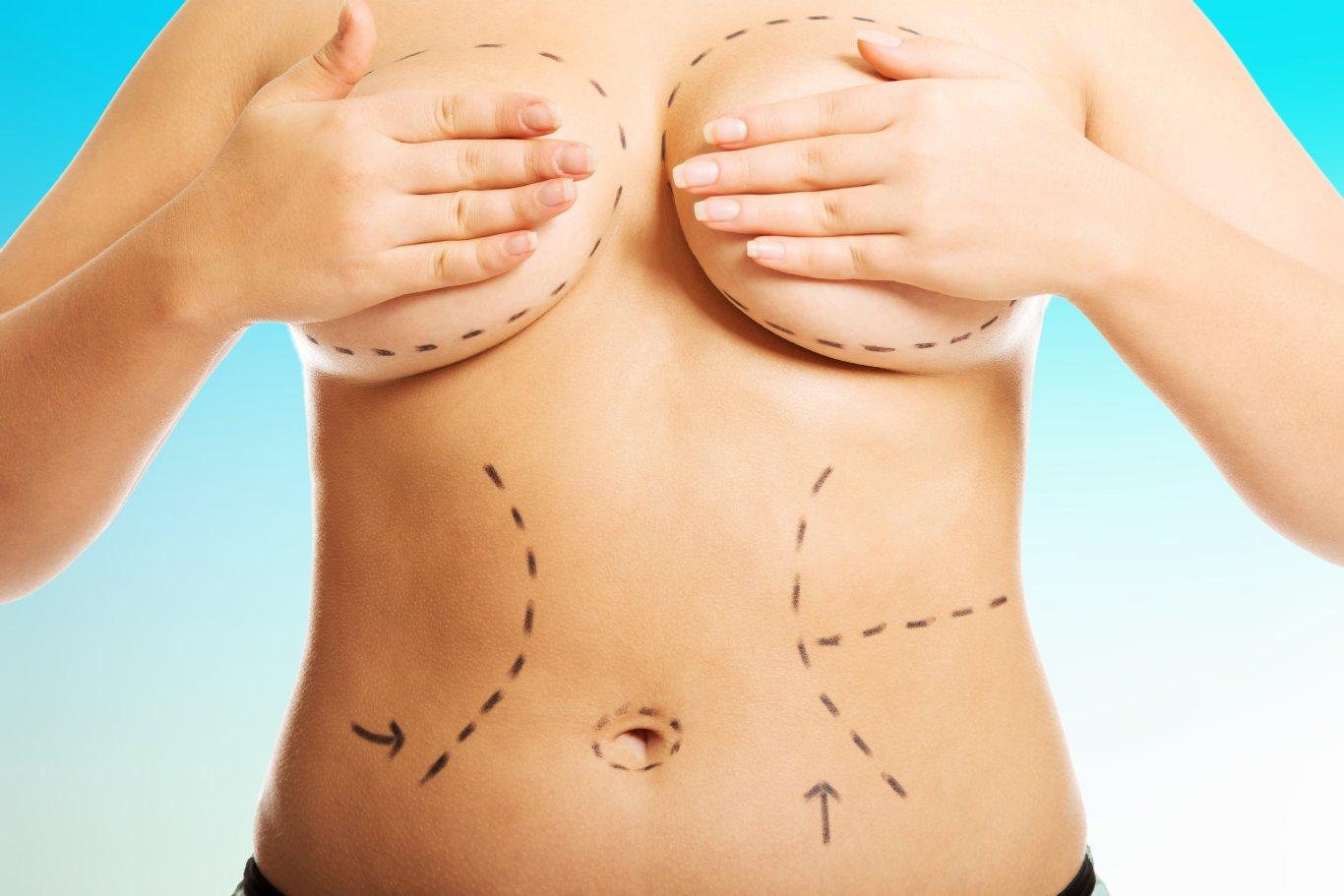 Addominoplastica post parto e liposuzione, quali risultati?