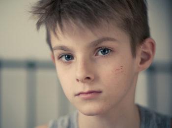 Le cicatrici dei bambini: come trattarle e accettarle