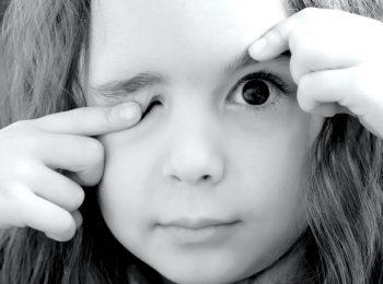 La ptosi palpebrale congenita: quando la palpebra non si apre completamente