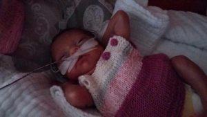 Storia di una nascita prematura - bambino prematuro