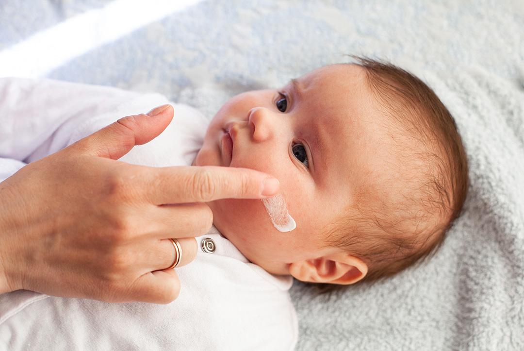 La dermatite atopica, cos'è e come si cura
